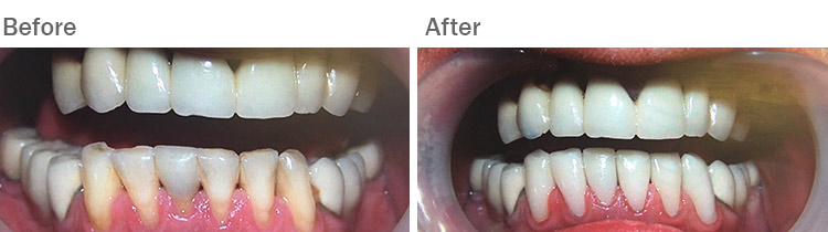 Smile makeover at The Dental Group