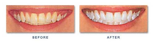 Teeth whitening at The Dental Group Southampton